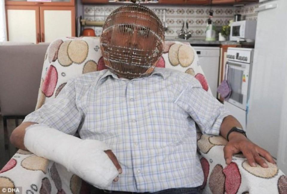 Stavio kavez na glavu kako bi se odvikao od pušenja VIDEO